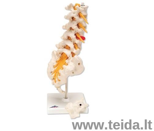 Juosmens srities stuburas su nugaros šoniniu prolapso tarpslanksteliniu disku